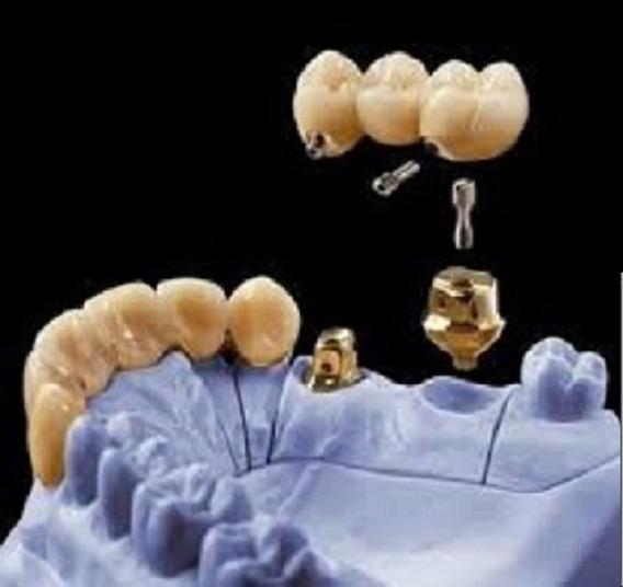 Degunorm Dentsply Liga Ouro Implante Dentario P/coroa/ponte