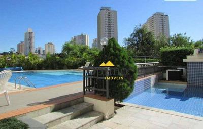 Apartamento Com 3 Dormitórios À Venda, 80 M² Por R$ 530.000 - Jardim Marajoara - São Paulo/sp - Ap2061