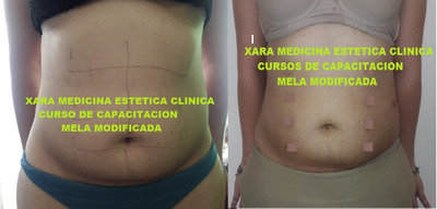 Taller On Line -liposuccion Localizada -mela Modificado -