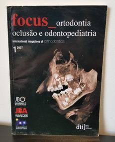 Revista Focus Ortodontia Oclusão E Odontopediatria