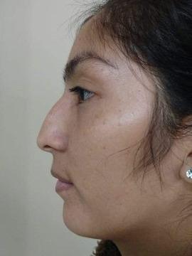 Nariz Perfecta Sin Cirugía