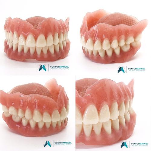 Imagen 1 de 10 de Prótesis Dentales Removibles Y Fijas