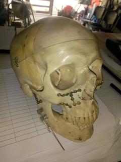 Cráneo Humano, Medicina