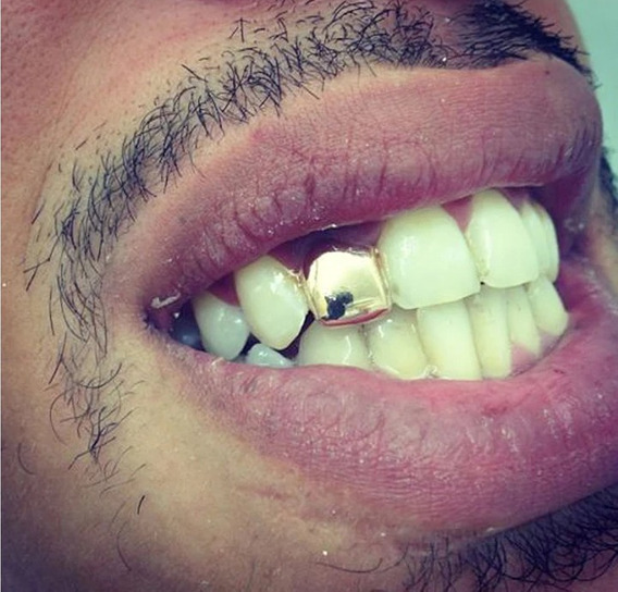 Grillz Dente Metal Cor Ouro Hip Hop Unico Dente