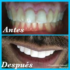 Diseño De Sonrisa. Carillas @consultorioinfavel