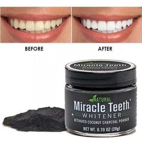 Blanqueador De Dientes Miracle Teeth Whitener Carbón Polvo