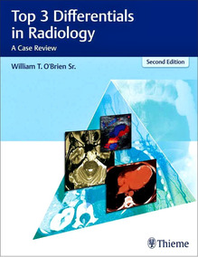 Top 3 Differentials In Radiology: A Case Review 2ed