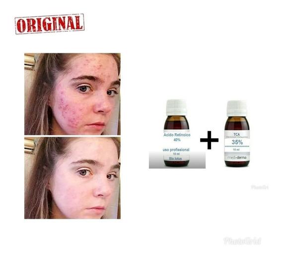 Anti Acne( Espinhas ) Acido Retinoico 10% 20 Ml