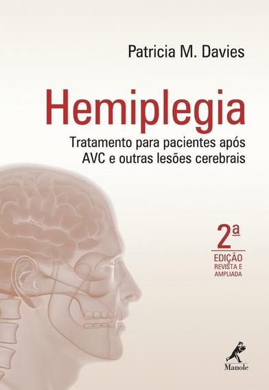 Hemiplegia Tratamento Após Avc