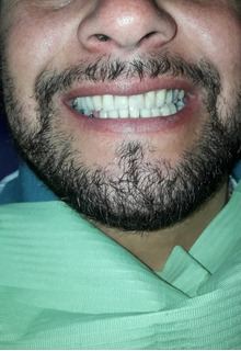 Mecánica Dental, Prótesis Acrílico O Flexibles, Odontologia