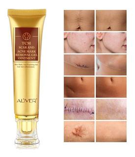 Crema Para La Cicatriz Tcm Scar And Acne Mark