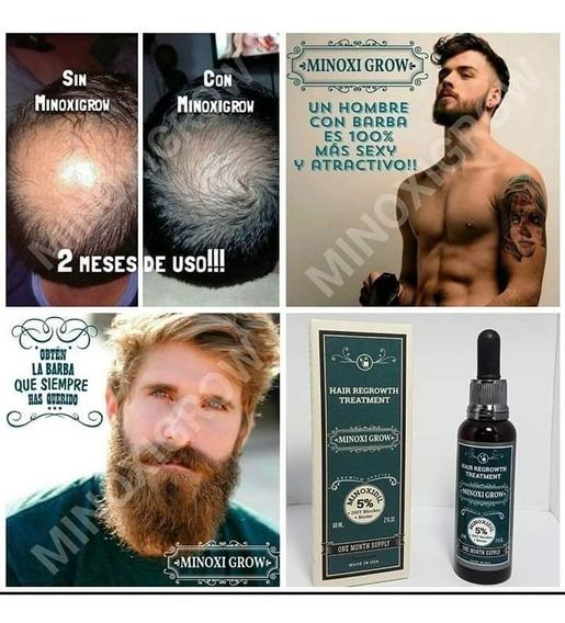 Tonico Calvicie-barba-cabello