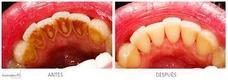Limpieza Dental + Fluor +consulta Y Evaluación