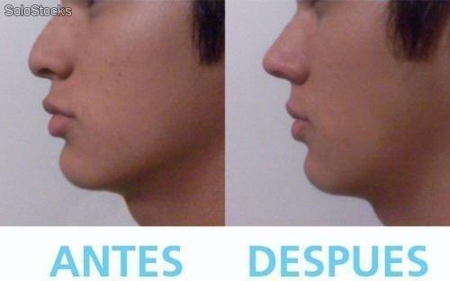 Perfilador Nariz Rinoplastia Sin Cirugia Respingador Nasal