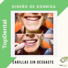 Carillas Dentales De Resina Sin Desgaste Dental En Solo 1h