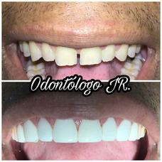 Carillas Diseños De Sonrisa - Sin Desgaste Dental - Odont