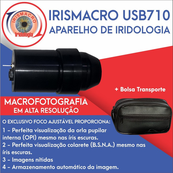 Aparelho De Iridologia - Irismacro Usb710 (iridoscópio)