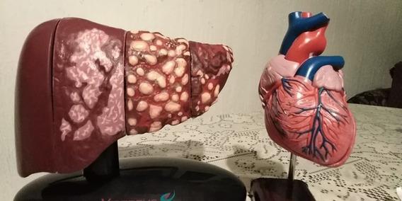 Modelo Anatomico De Higado Con Patologias Y Corazon