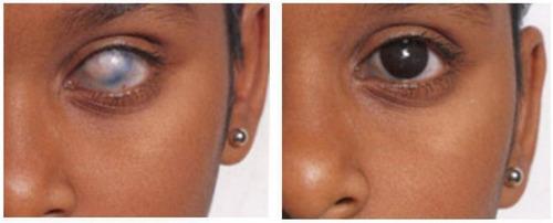Lente De Contacto Pupila Negra Pupilente  Cosmetico