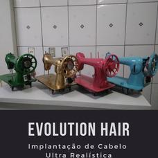 Maquina De Implantar Cabelos + Curso Online