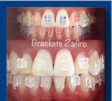 Atención Odontologica Integral