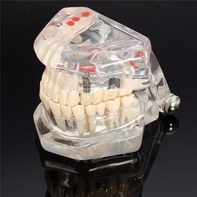 Manequim Modelo Odontológico Dentistas Implantes Próteses