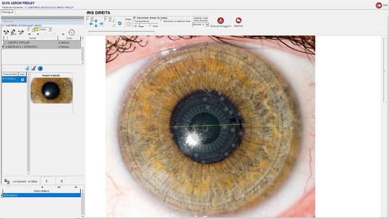 Software Iris3d Iris Iridologia