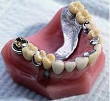 Confección Y Reparación De Prótesis Dentales