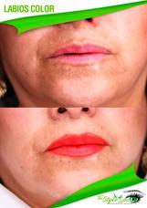 Labial Permanente Micropigmentacion Ojos Cejas Vitiligo