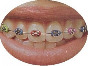 Ortodoncia Brackets $ 4800 Primer Ajuste Gratis