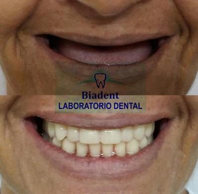 Elaboración De Prótesis Dental Todo Tipo Laboratorio