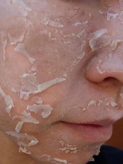 Peeling Ácido Retinoico 10%20%40 Mancha 30ml + Tca/ata