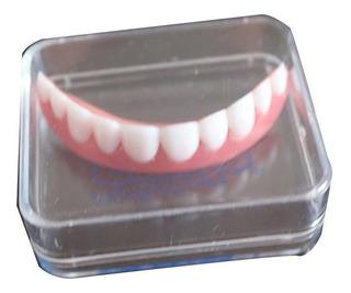 Carillas Dentales Cosméticos Dientes De Endonadura Superior