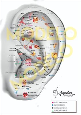 Kit Auricular - Mapas + Brinde - Ficha De Anamnese + P. 3d