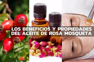 Aceite Regenerador Rosa Mosqueta De Chile, Rejuvenece Piel