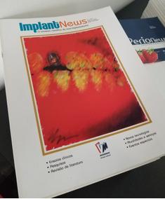 Kit C/ 5 Revista Odontologia Implant News Diversas Edições