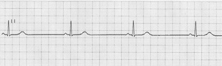 Papel P/ Electrocardiógrafo 50mmx30mts Cardio Charts X 10 U