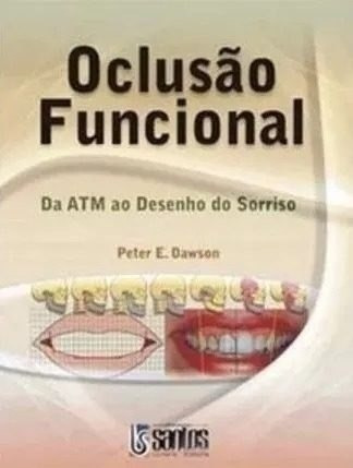 Oclusão Funcional Da Atm Ao Desenho Do Sorriso Peter Dawso