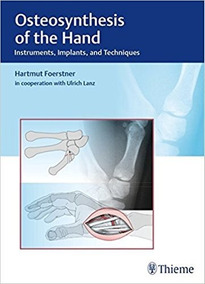 Osteosynthesis Of The Hand 2016 .. Eb.