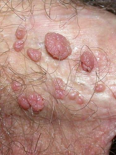 hpv dry skin