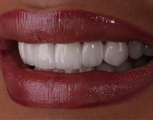 Imagem 1 de 5 de Lentes Dentais De Porcelana Ou De Resina.