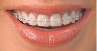 Resultado de imagen para Ortodoncias Invisibles