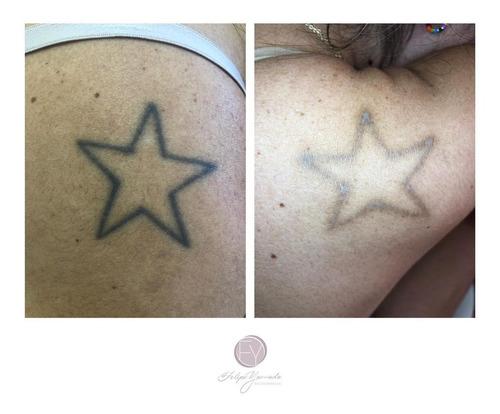 Remoção De Tatuagem E Despigmentação De Sobrancelhas