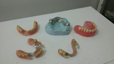 Reparacion De Protesis En El Momento Mecánico Dental Directo