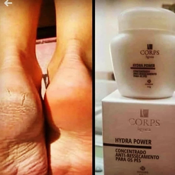 10 Elimine As Rachaduras Nos Pés Com Hydra Power - 55g