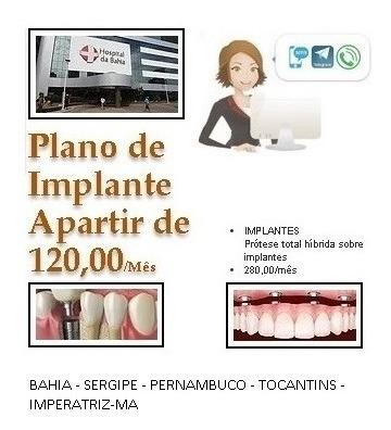 Imagem 1 de 1 de Plano Dentário , Implanter Apartir De R$ 120