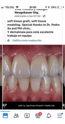 Coronas De Porcelana 800.00 Cada Una Citas 5532278278 Cdmx