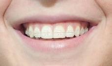 Brackets - Ortodoncia Promoción Enero 2018- Dentista
