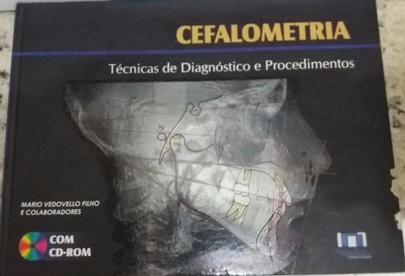Cefalometria - Técnica De Diagnóstico E Procedimentos