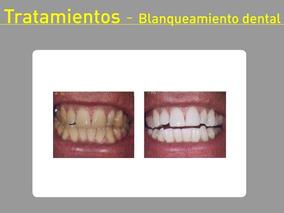 Ortodoncia_odontologia